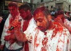 Penganut Syiah mencederakan diri sendiri.  Inikah ajaran Islam?!